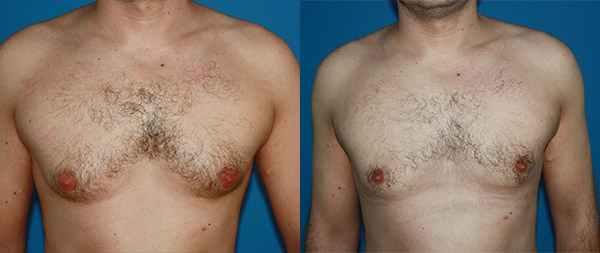 Male gynecomastia Ginecomastia-9-1