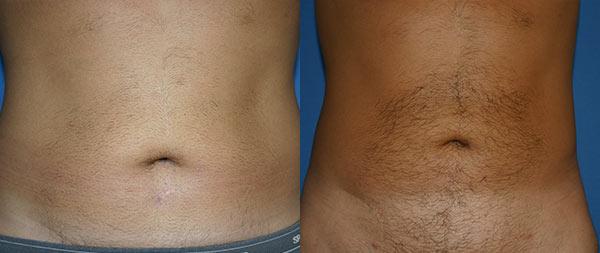 Liposuction and fat transplantation (lipofilling) Liposuccion-13-Instituto-Perez-de-la-Romana-1