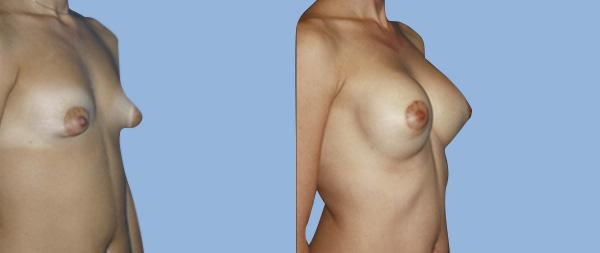 Tuberous breasts Mamas-Tubulares-03-Instituto-Perez-de-la-Romana-1