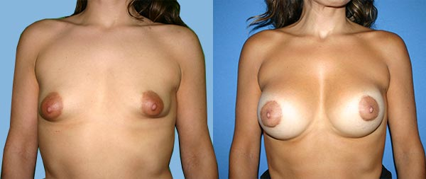 Tuberous breasts Mamas-Tubulares-04-Instituto-Perez-de-la-Romana-2