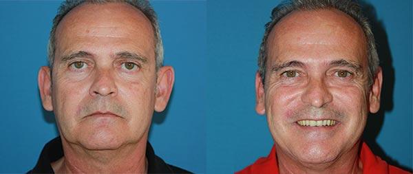 Otoplasty (ear surgery) Otoplastia-03-Instituto-Perez-de-la-Romana-1