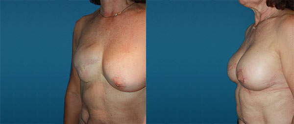 Breast reconstruction Reconstruccion-mamaria-01-Instituto-Perez-de-la-Romana-1