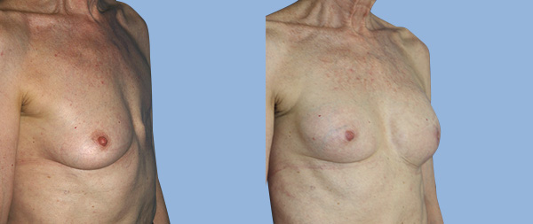 Breast reconstruction Reconstruccion-mamaria-02-Instituto-Perez-de-la-Romana-1