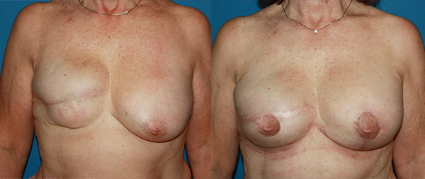 Breast reconstruction Reconstruccion-mamaria-03-Instituto-Perez-de-la-Romana-1
