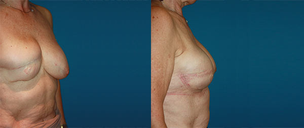 Breast reconstruction Reconstruccion-mamaria-04-Instituto-Perez-de-la-Romana-1