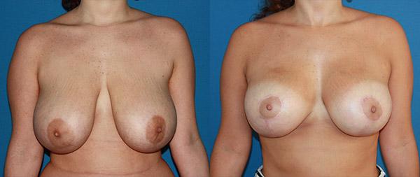 Breast reduction Reduccion-de-mamas-01-Instituto-Perez-de-la-Romana
