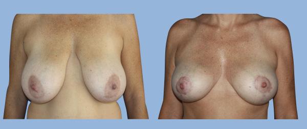 Breast reduction Reduccion-de-mamas-02-Instituto-Perez-de-la-Romana