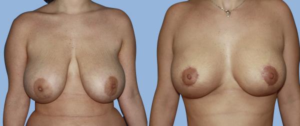 Breast reduction Reduccion-de-mamas-03-Instituto-Perez-de-la-Romana