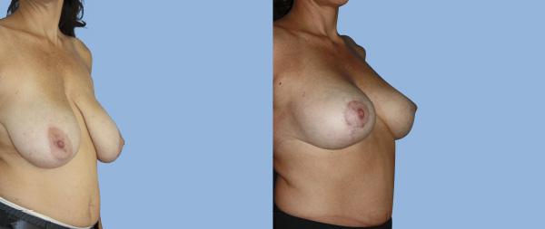 Breast reduction Reduccion-de-mamas-04-Instituto-Perez-de-la-Romana-1