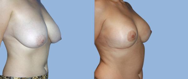 Breast reduction Reduccion-de-mamas-07-Instituto-Perez-de-la-Romana
