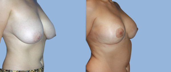 Уменьшение груди Reduccion-de-mamas-07-Instituto-Perez-de-la-Romana