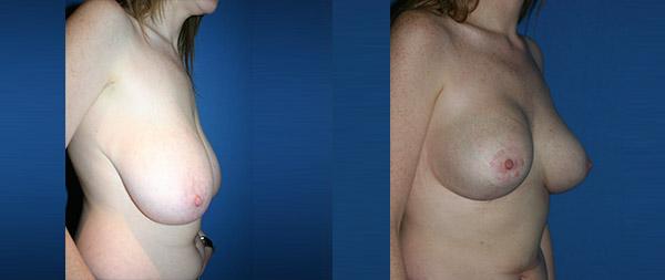Уменьшение груди Reduccion-de-mamas-08-Instituto-Perez-de-la-Romana