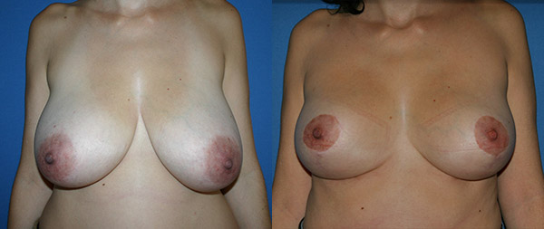 Уменьшение груди Reduccion-de-mamas-10-Instituto-Perez-de-la-Romana