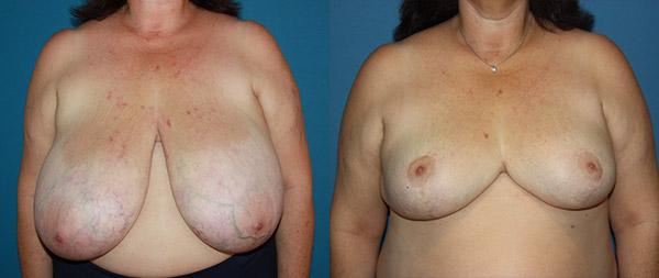 Breast reduction Reduccion-de-mamas-11-Instituto-Perez-de-la-Romana