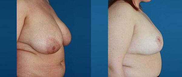 Breast reduction Reduccion-de-mamas-12-Instituto-Perez-de-la-Romana