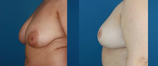 Breast reduction Reduccion-de-mamas-13-Instituto-Perez-de-la-Romana