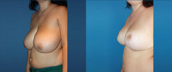 Breast reduction Reduccion-de-mamas-15-Instituto-Perez-de-la-Romana
