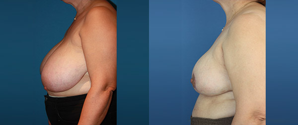 Breast reduction Reduccion-de-mamas-16-Instituto-Perez-de-la-Romana