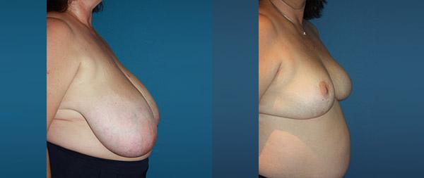 Breast reduction Reduccion-de-mamas-17-Instituto-Perez-de-la-Romana