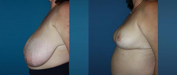 Уменьшение груди Reduccion-de-mamas-18-Instituto-Perez-de-la-Romana