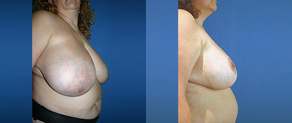 Breast reduction Reduccion-de-mamas-19-Instituto-Perez-de-la-Romana