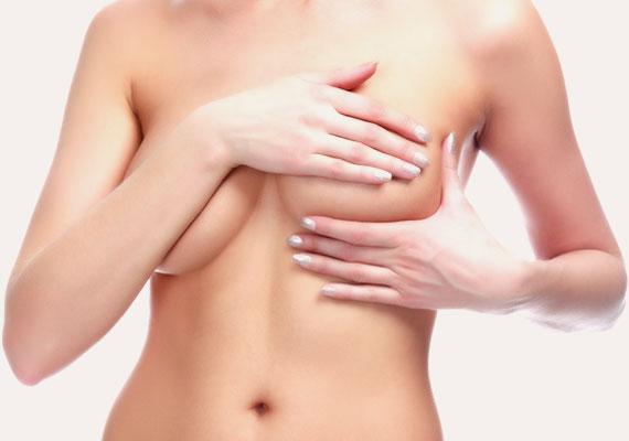 Асимметрия груди asimetria-mamaria