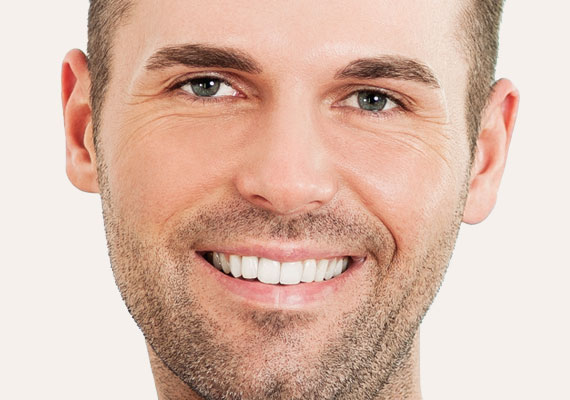 Otoplasty: Male ear surgery cirugia-orejas-masculina