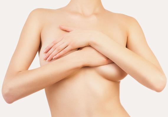 Operación de pecho tuberoso mamas-tuberosas