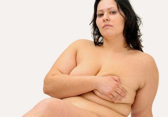 Unidad de obesidad cirugia-bariatrica