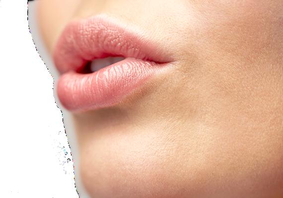 Operación de aumento de labios aumento-labios-1