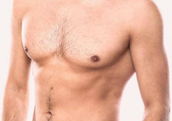 Male gynecomastia ginecomastia