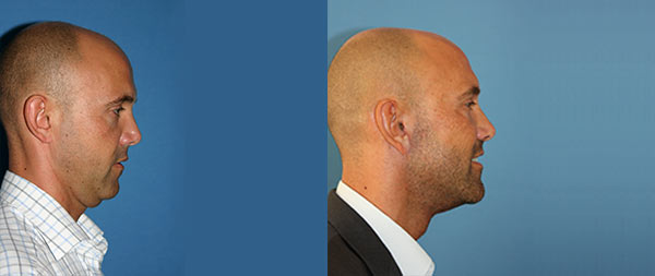 Лифтинг лица для мужчин Lifting-Facial-Hombres-01-instituto-Perez-de-la-Romana-1-1