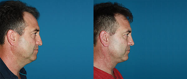 Facelifts for men Lifting-Facial-Hombres-02-instituto-Perez-de-la-Romana-1