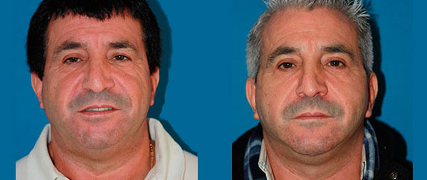 Facelifts for men Lifting-Facial-Hombres-06-instituto-Perez-de-la-Romana-1