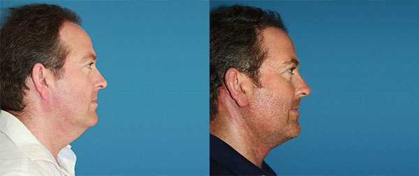 Facelifts for men Lifting-Facial-Hombres-07-instituto-Perez-de-la-Romana-1