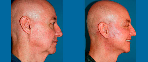 Facelifts for men liftin-perfil-1-1