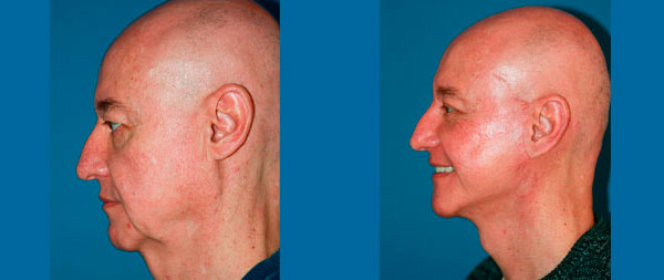 Facelifts for men liftin-perfil-3-1