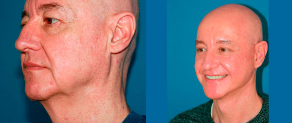 Facelifts for men lifting-34-2-1