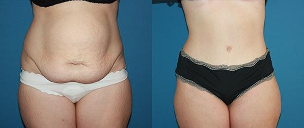Abdominoplasty caso1-1
