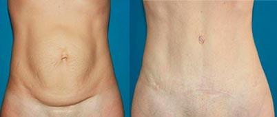 Abdominoplasty caso1-1d