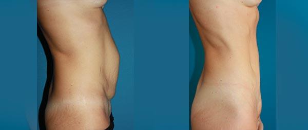 Abdominoplasty caso2-2