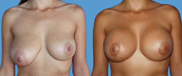 Breast asymmetry ANTES-DESPUEES-caso-4