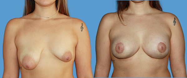 Tuberous breasts CASO-1-2