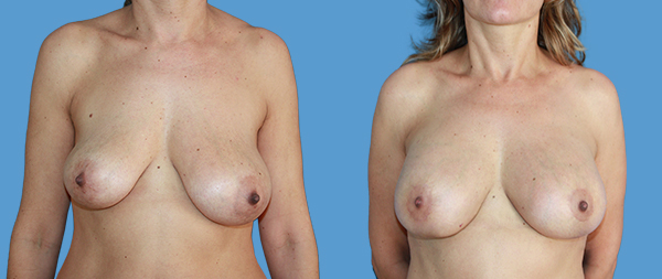 Асимметрия груди CASO-2