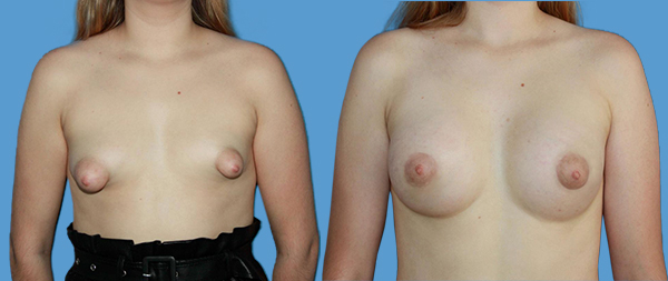 Tuberous breasts CASO-3