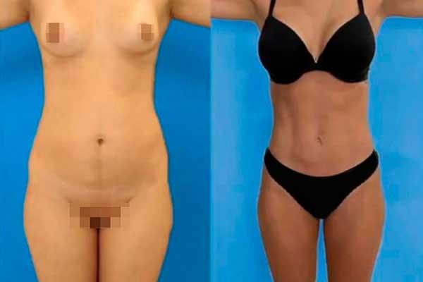 Liposucción en Alicante con Vaser Lipo bragas-negras-mujer-lipovaser-3_1