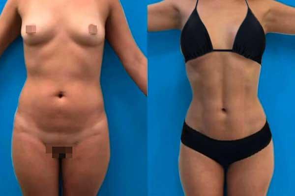 Liposucción en Alicante con Vaser Lipo bragas-negras-mujer-lipovaser-6_1