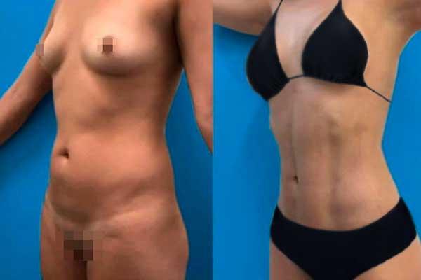 Liposucción en Alicante con Vaser Lipo bragas-negras-mujer-lipovaser-7-1_1