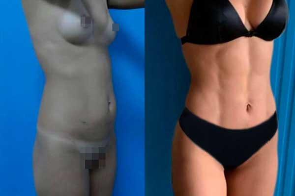 Liposucción en Alicante con Vaser Lipo bragas-negras-y-suje-negro-mujer-lipovaser-15_1