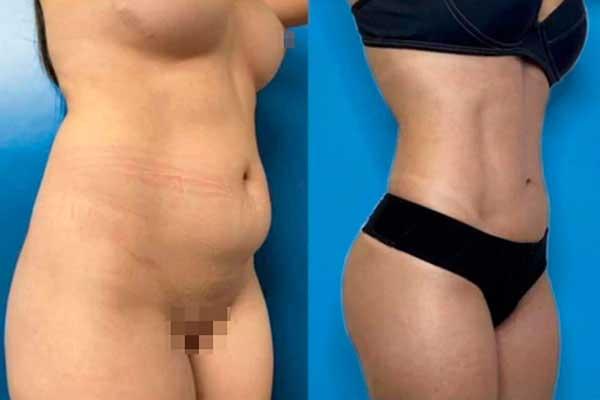 Liposucción en Alicante con Vaser Lipo bragas-y-el-suje-negras-mujer-lipovaser-11_1